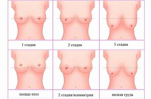 Виды состояний женской груди