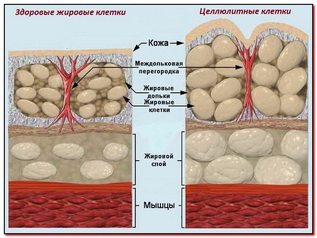 целлюлитные клетки