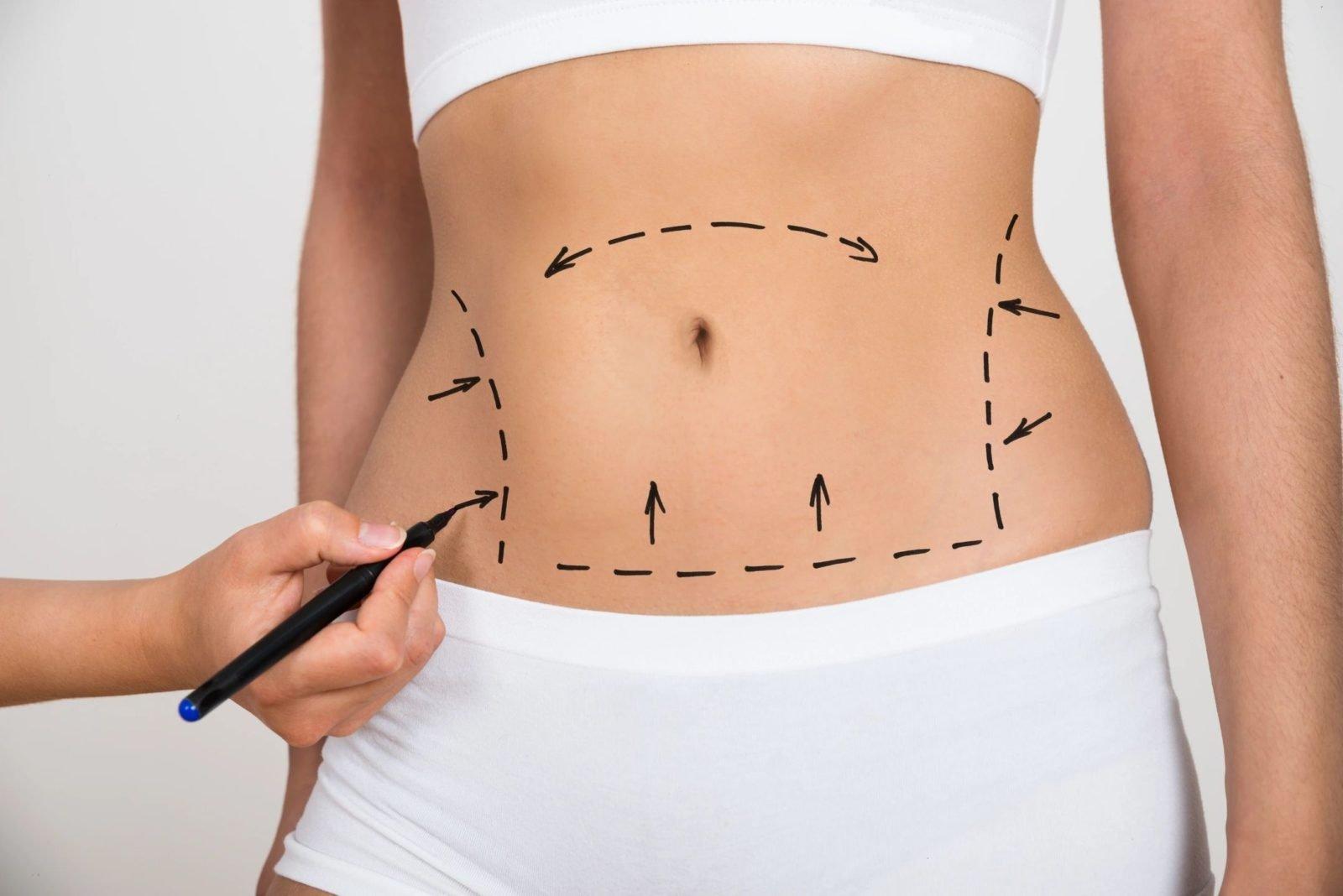 Как быстро похудеть – ТОП лучших методов