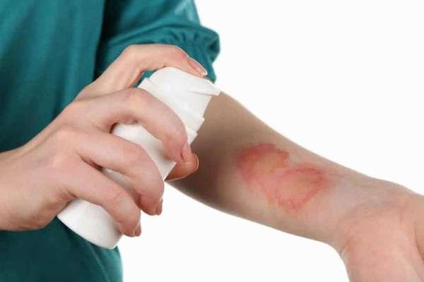 Обработка ран антибактериальными препаратами