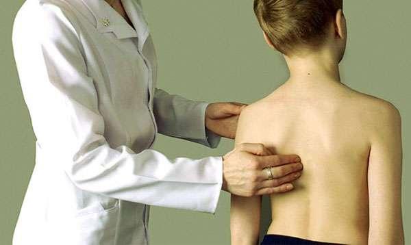 врач осанка ребенок