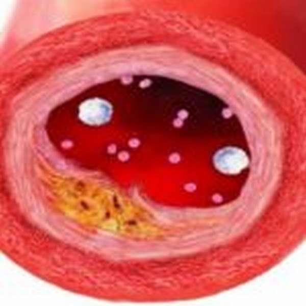 Появление атеросклеротических бляшек