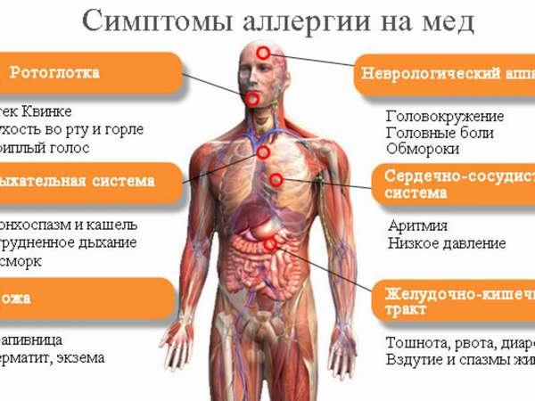 Симптомы аллергии на мед