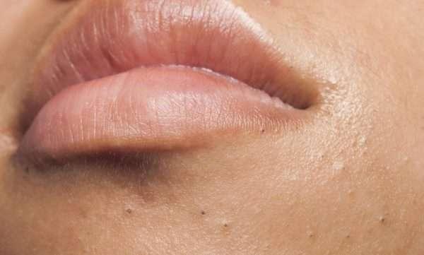 Почему появляются и как убрать черные точки с губ