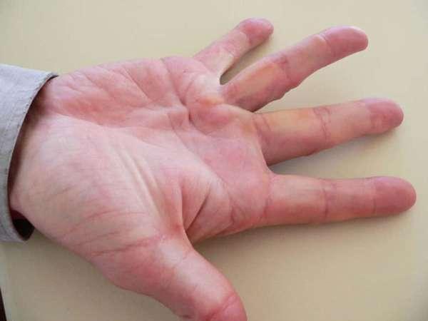 Ожог руки первой степени