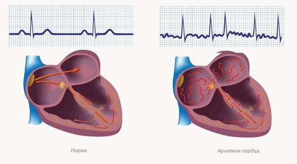 Нарушении ритма сердца