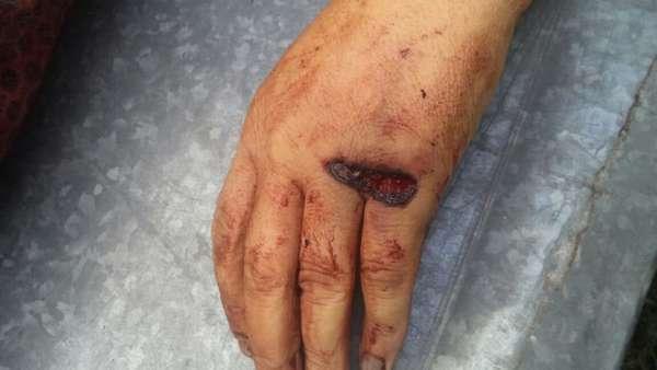 Огнестрельная рана