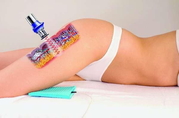 Достоинства лечения целлюлита лазером