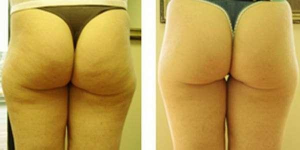 душ массаж до и после женщина сзади