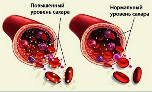 Последствия повышенного инсулина