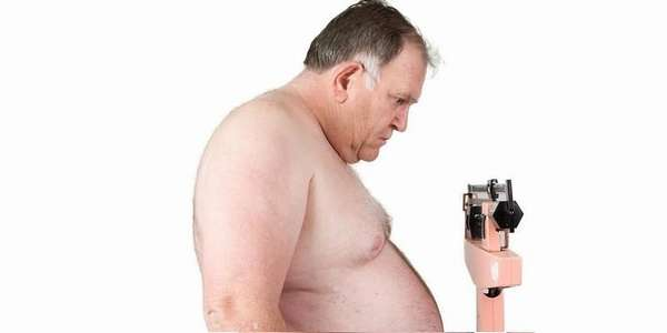 Ятрогенное ожирение