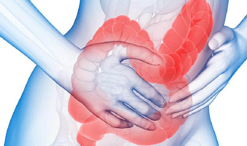 Раздражение толстого кишечника