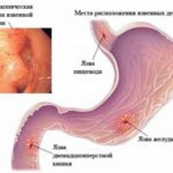 Язвенные заболевания