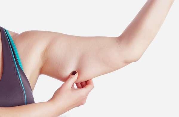 Растяжки на руках у женщин