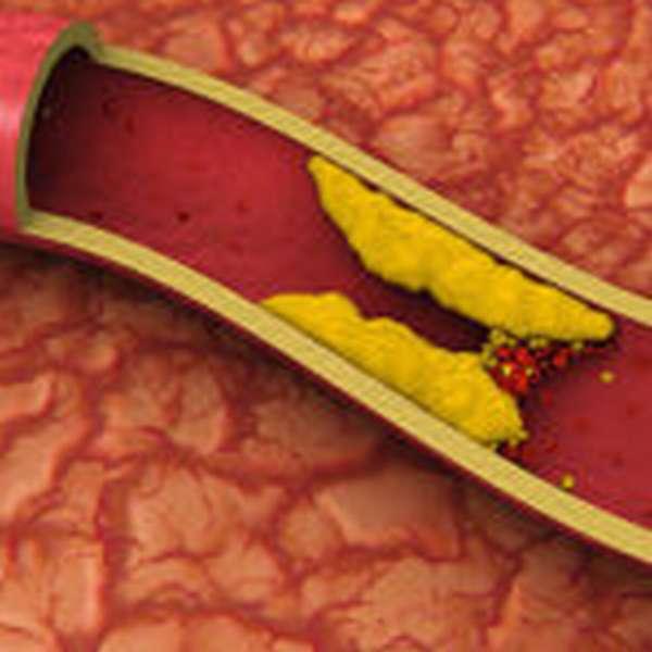 Увеличение холестерина в крови