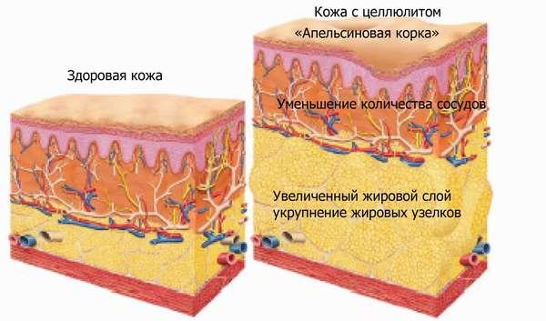 жир-микроскоп
