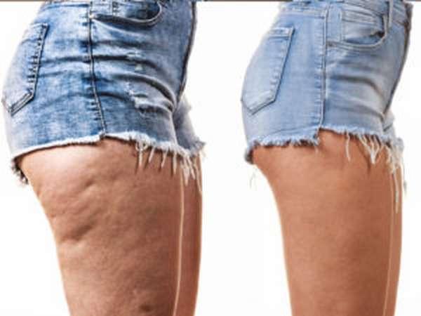 Короткие шорты при целлюлите