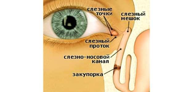 закупорка слезного канальца
