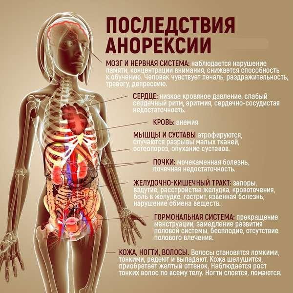Анорексия, фото