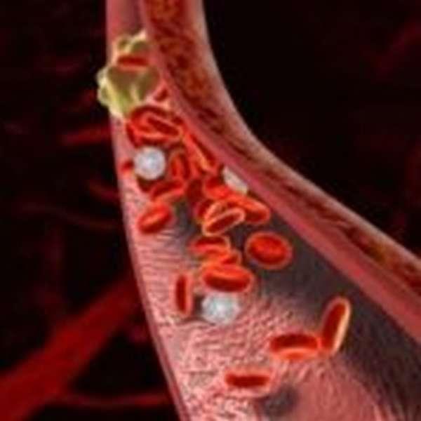 Тромбозы