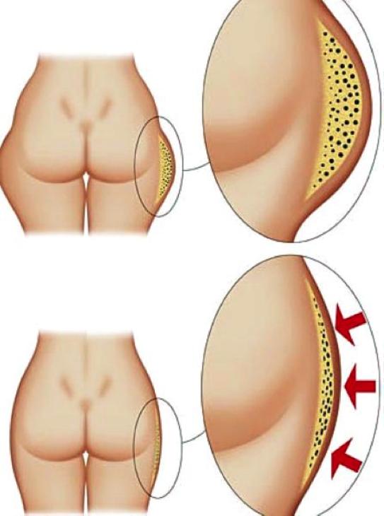 Причины появления жировых отложений в области бедер