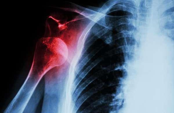 Рентген травмы плеча