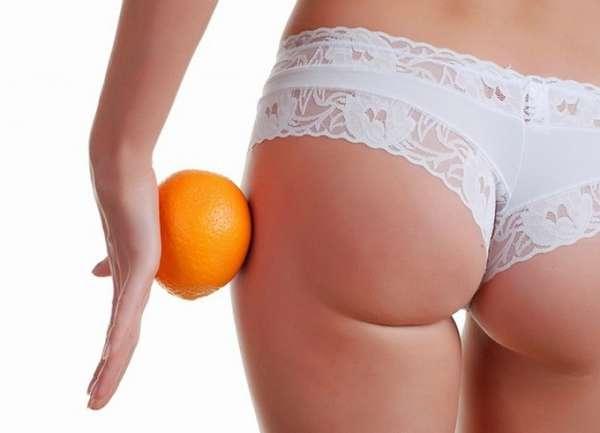Что приводит к возникновению «апельсиновой корочки»